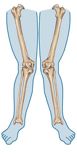 Valgus polozaj kolena ili X noge