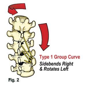 skolioza - rotacija prsljenova