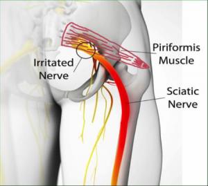 Piriformis - Iritiranje nerva