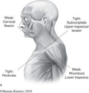 gornji ukršteni sindrom