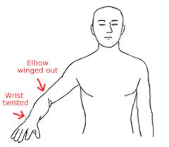 Najčešći polozaj ruke u radu sa misem