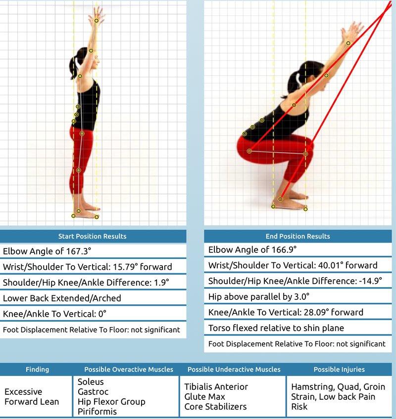 Procena posture