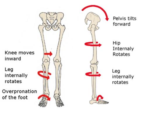 Uticaj ravnih stopala na zglobove