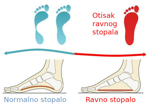 Norlmalno i ravno stopalo