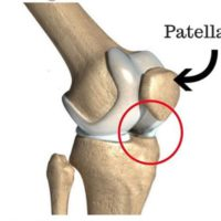 rešavanje bola u kolenu