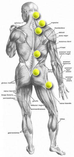 Bolne tačke na leđima - Trigger point